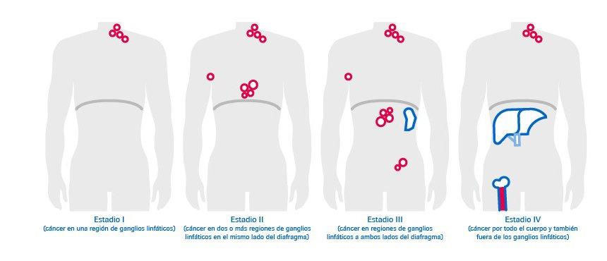 cancer de hodgkin estadio 4