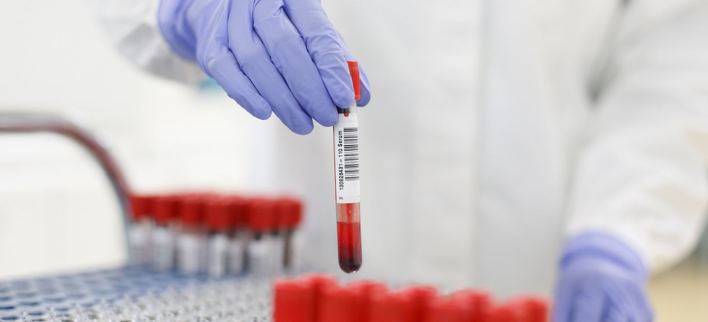 Close up of technician sorting blood samples