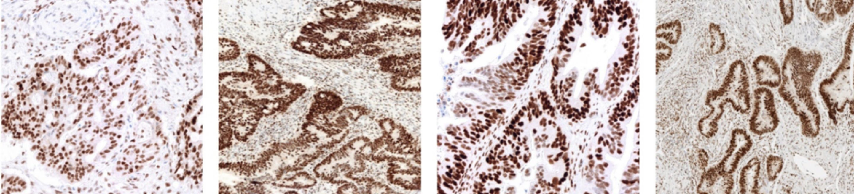 Colorectal cancer staining positive using the VENTANA MMR IHC Panel