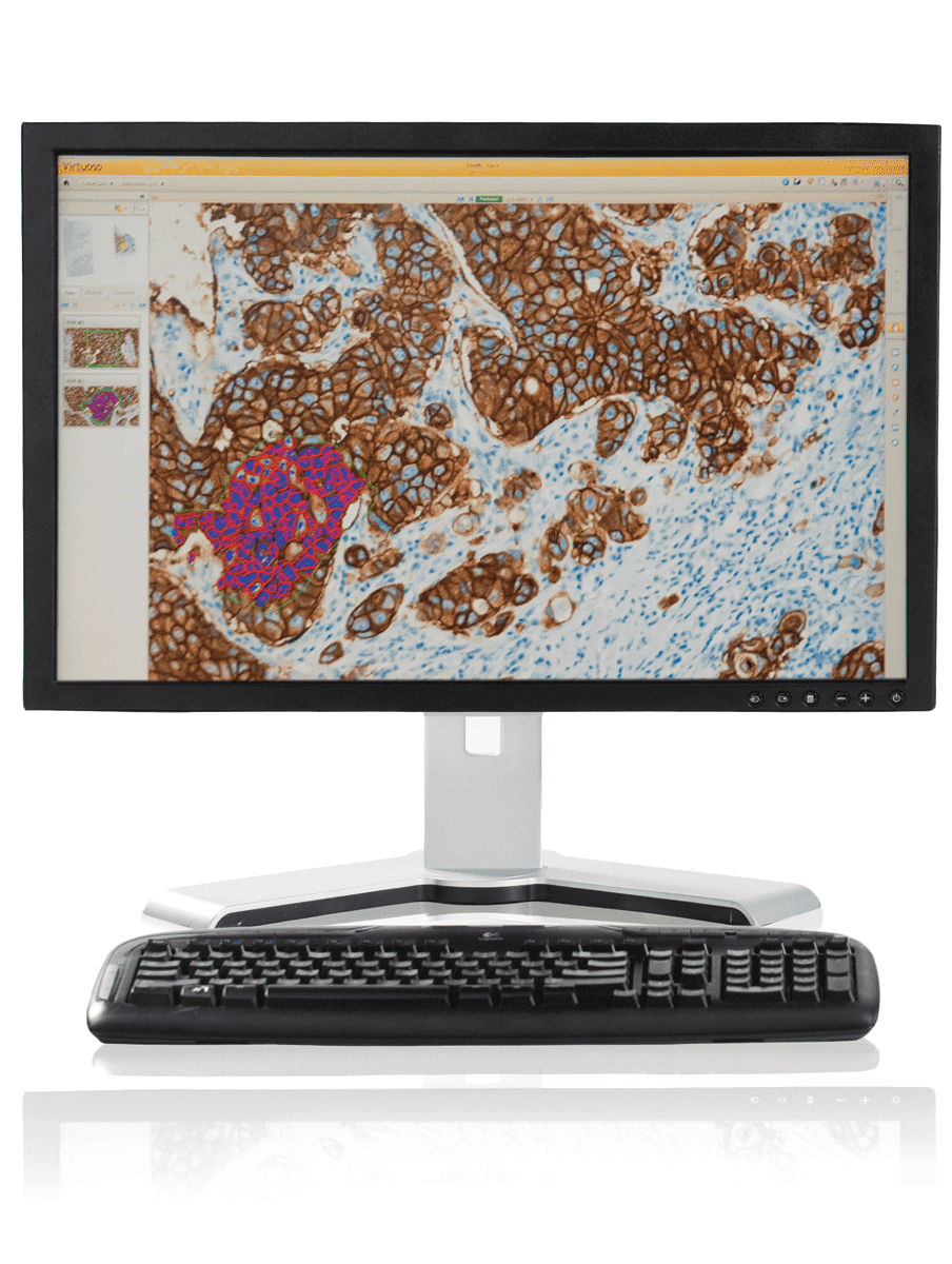 ventana virtuoso digital pathology software