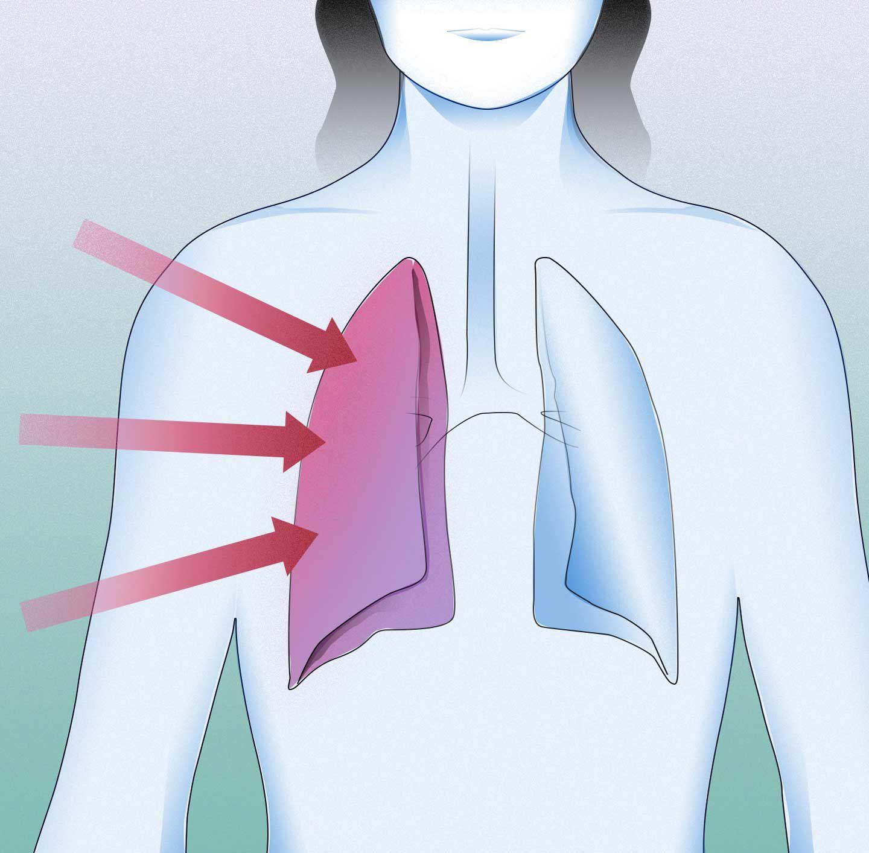 Grafika pro respirační infekce