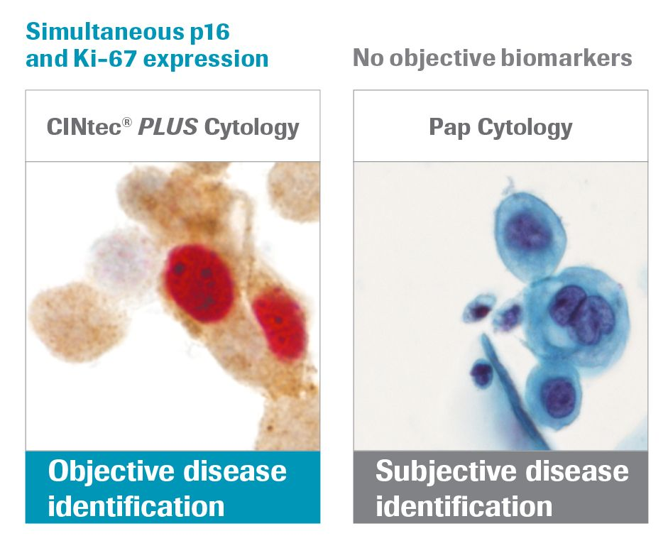 CINtec PLUS Cytology positive dual stain result showing co-expression of biomarkers p16 & Ki-67 immunocytochemistry