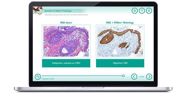 CINtec Histology Training Module