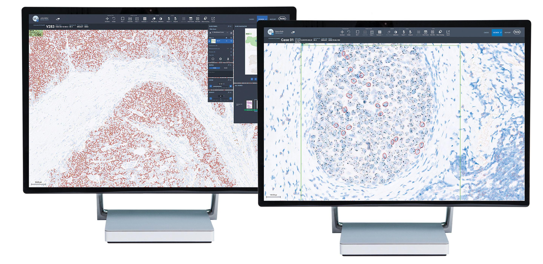 HER2 4B5 and Dual ISH Desktop