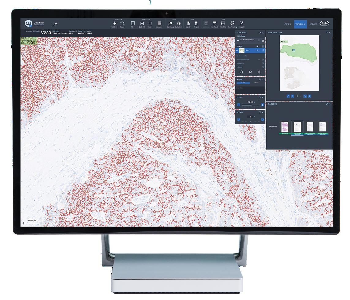 HER2 (4B5) image analysis algorithm