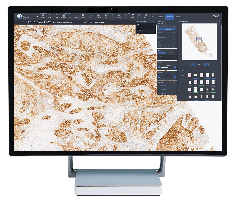 Image of the VENTANA uPath software