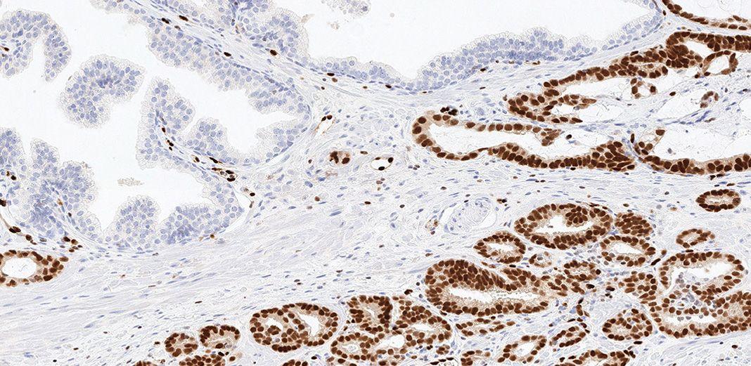 Klinik reaktifler ve testler p63 (4A4) Fare Monoklonal Primer Antikorunu içerir