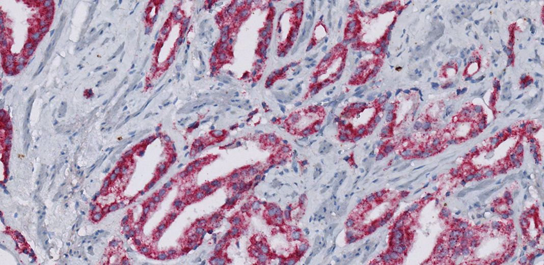 Immunohistochemical staining of p504s (SP116) Rabbit Monoclonal Primary Antibody