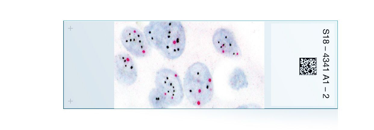 Breast IHC Assays