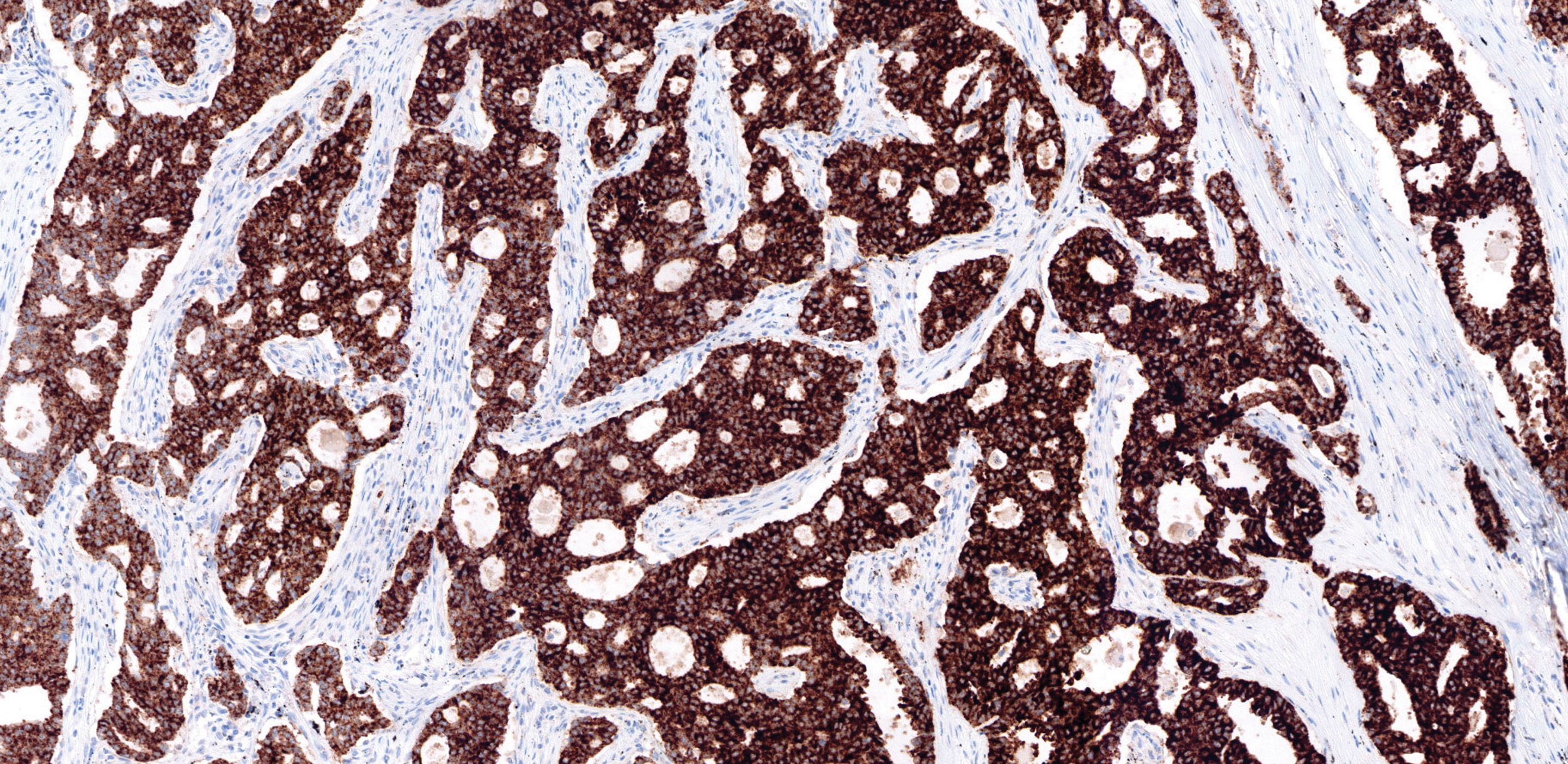 Positive case of lung tissue stained for ALK with VENTANA ALK (D5F3) CDx Assay