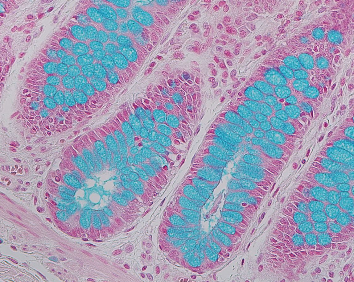 Alcian Blue stain on colon tissue, 400x