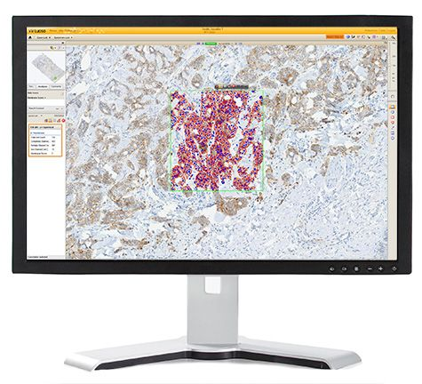 Image of the VENTANA Companion Algorithm image analysis software