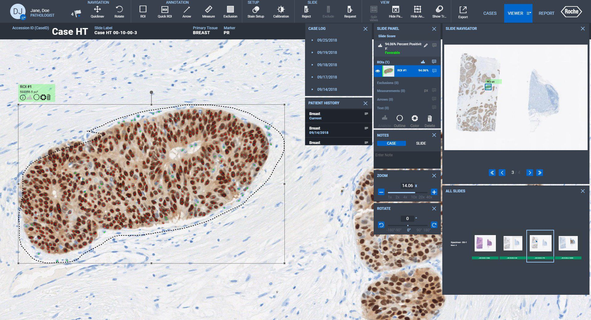 Companion Algorithms pathology software