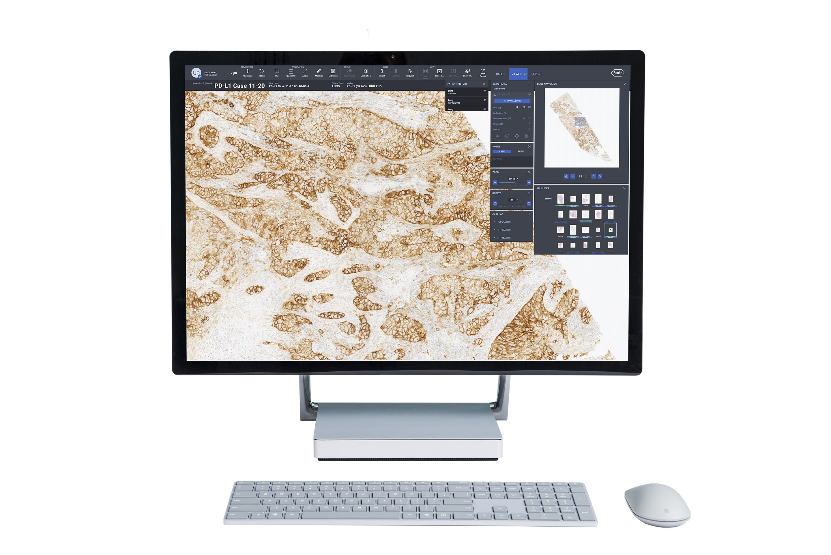 Roche uPath Software für digitale Pathologie