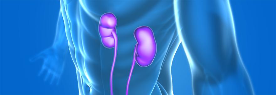 RMD_Molecular Home Assay_Transplant