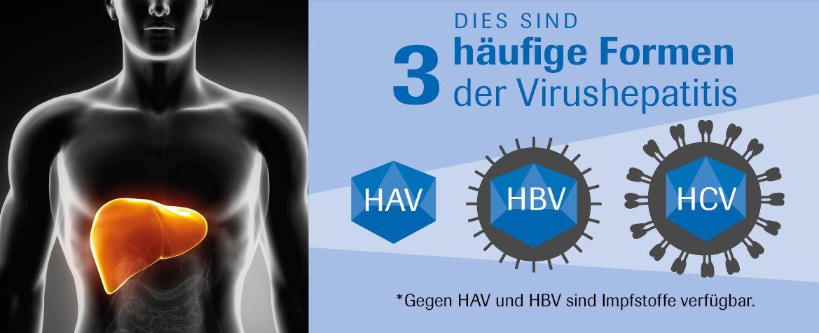 3 Arten von viraler Hepatitis