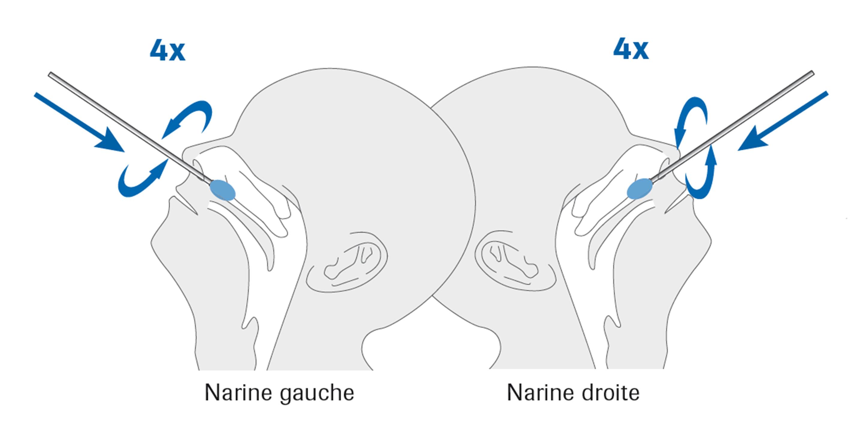 Test rapide de détection de l'antigène du SRAS-CoV-2 par écouvillon nasal