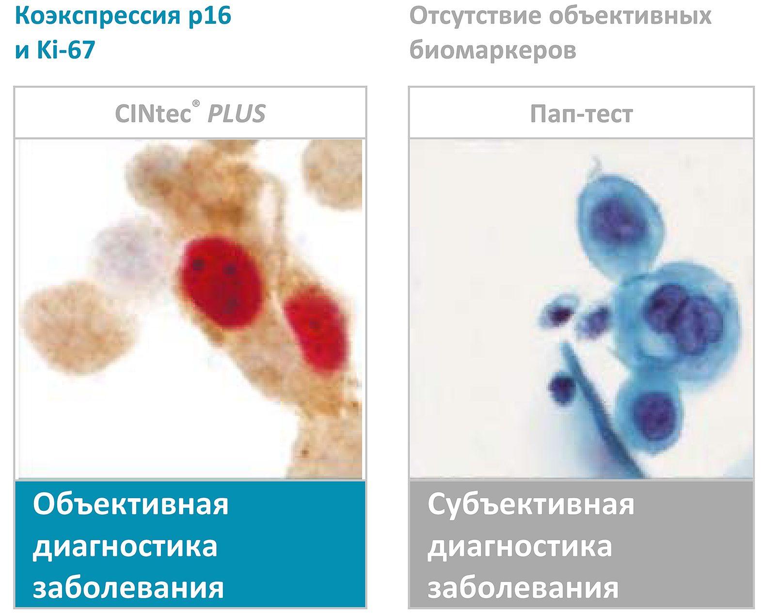 Окрашивание с помощью теста CINtec PLUS Cytology
