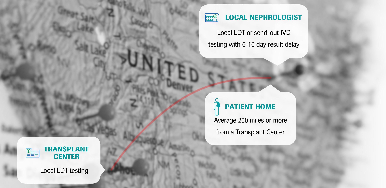 Transplant map
