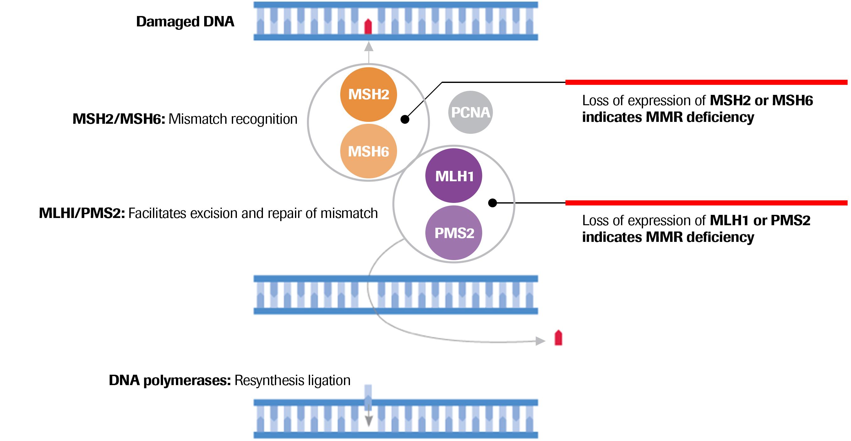 MMR infographic