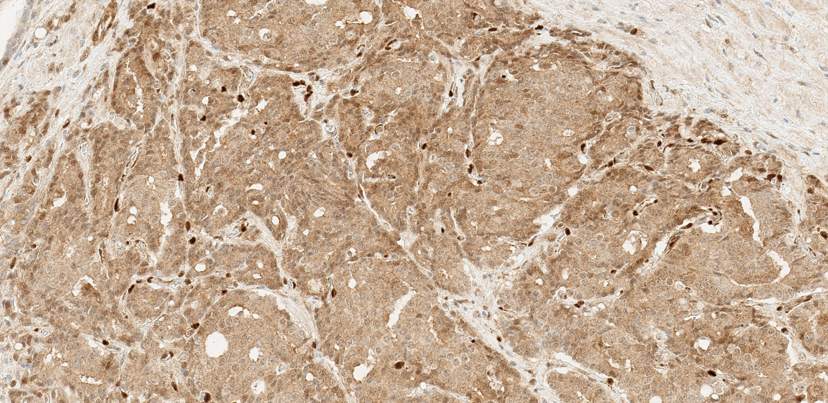 immunohistochemical staining with Basal Cell Cocktail 34ßE12 + p63
