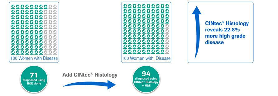 In tissue biopsy specimens from women with disease, CINtec® Histology helps find more high grade disease compared to H&E alone