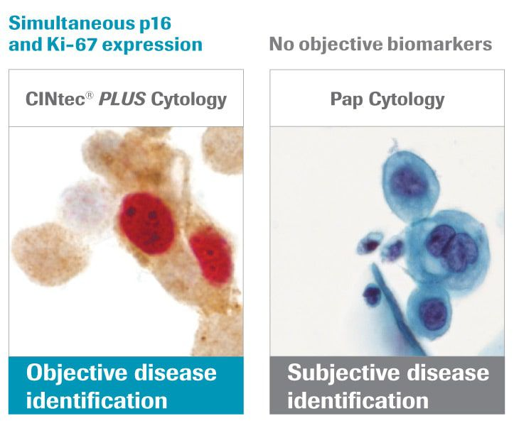 Pap cytology: objective biomarker technology CINtec PLUS Cytology showing co-expression of p16 Ki-67